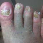 Dopo del trattamento